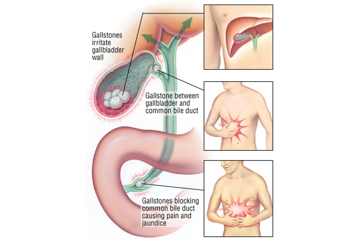 Laparoscopic Surgery for CBD Stones