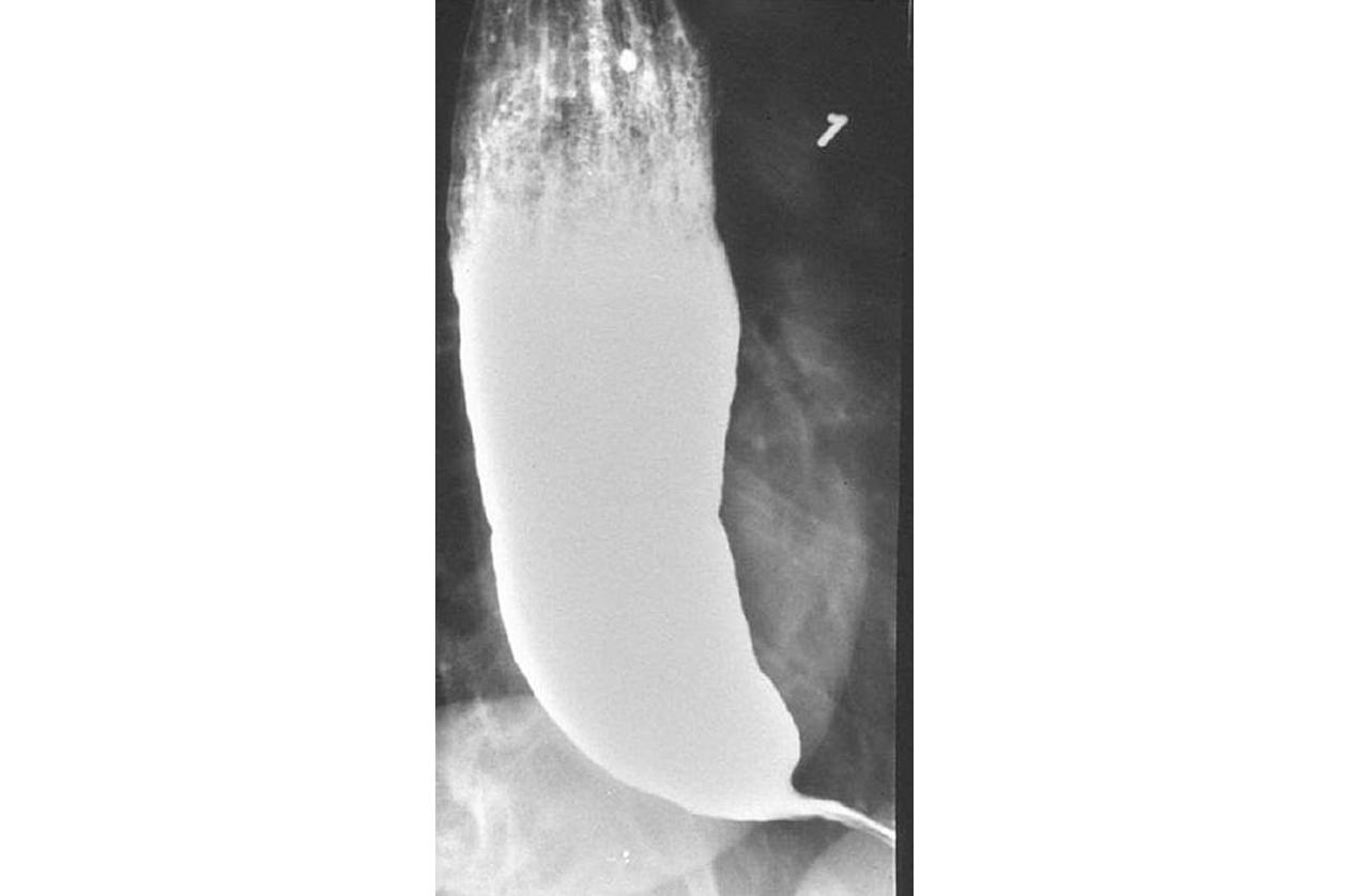 Laparoscopy for Achalasia Cardia