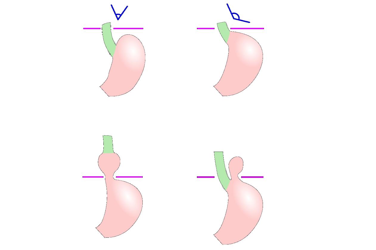Laparoscopy For Hiatus Hernia and GERD